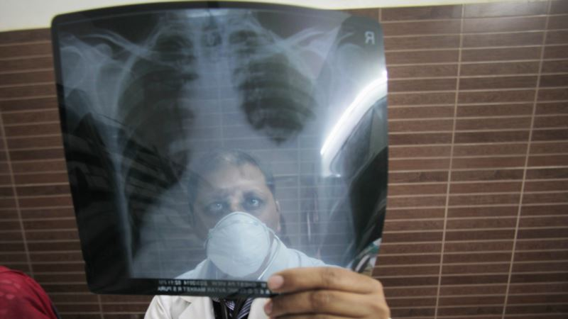 Evidence of TB Found in People who are 'Cured'