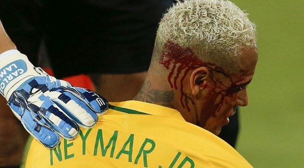 WATCH: Neymar's attempt at a nutmeg while playing for Brazil ended in a bloody mess