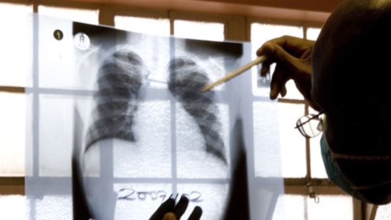 Drug-Resistant TB Higher than Thought in West Africa