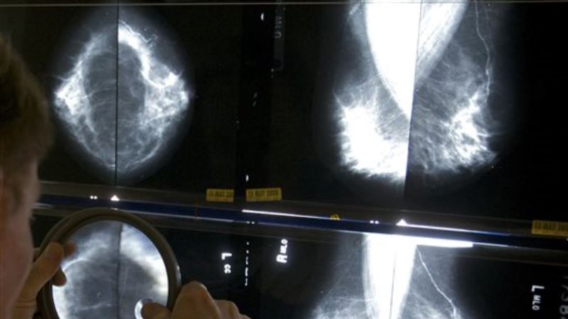 Studies: Cancer Can Spread Undetected, Before Tumor Develops